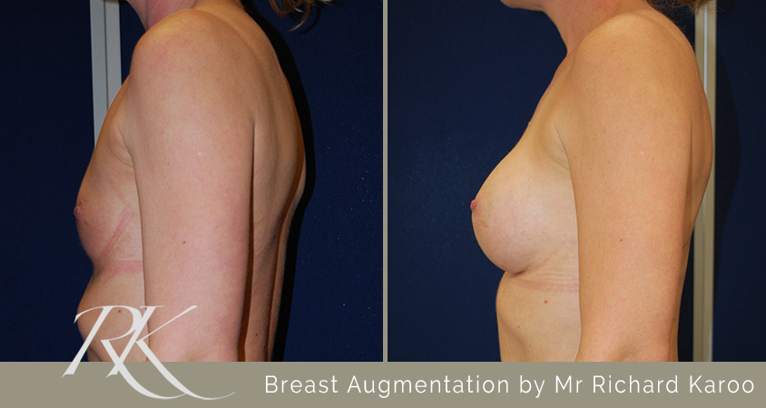 Breast Augmentation Cardiff Side