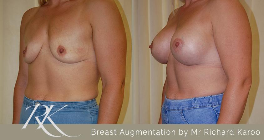 Breast Augmentation Cardiff
