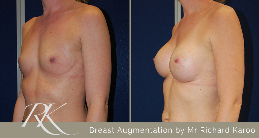 Breast Augmentation Results Cardiff