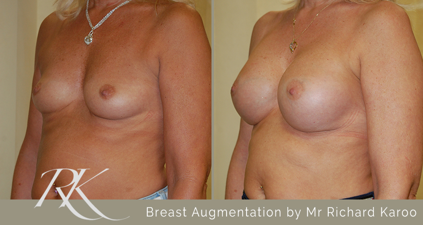 Breast Augmentation Results South Wales