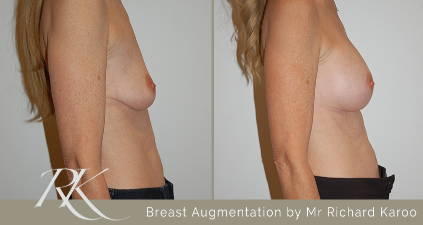 Breast Augmentation South Wales Side