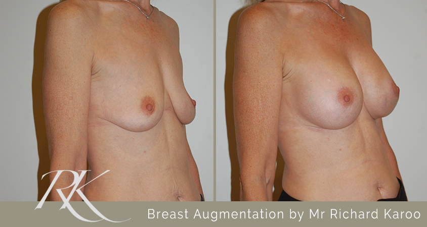 Breast Augmentation South Wales
