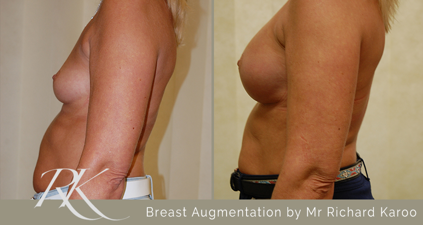 Breast Augmentation Swansea