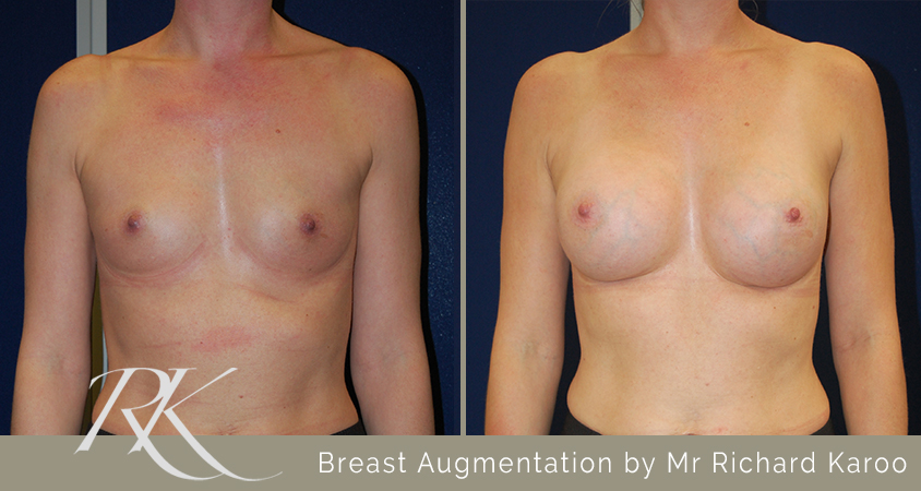 Breast Enhancement Results Swansea