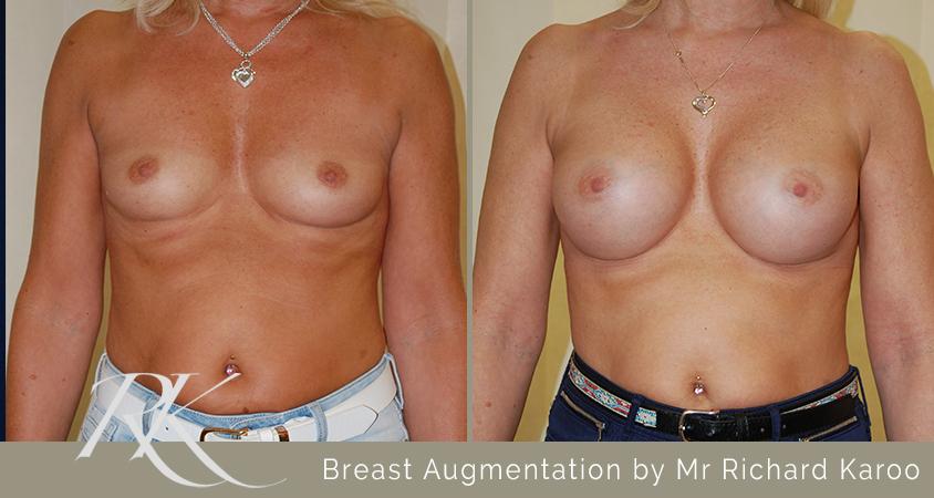 Breast Enhancement Swansea