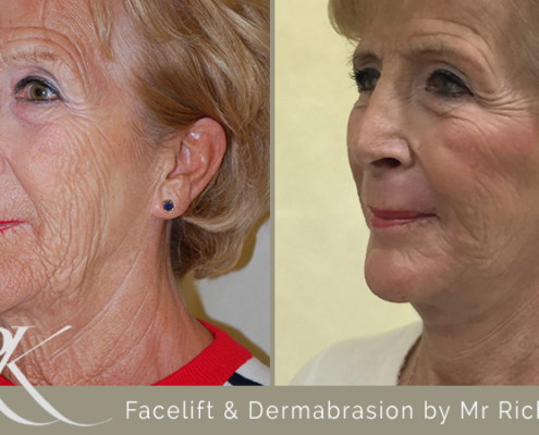 Facelift & Dermabrasion Results Cardiff