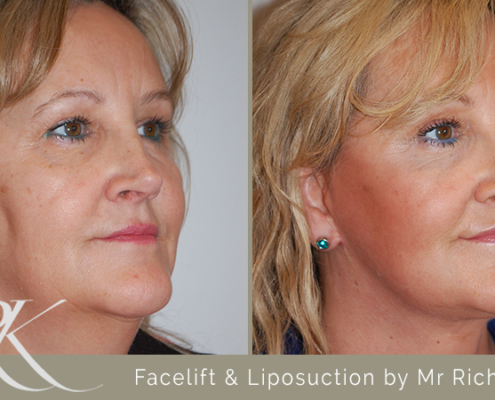 Facelift & Liposuction Results Cardiff