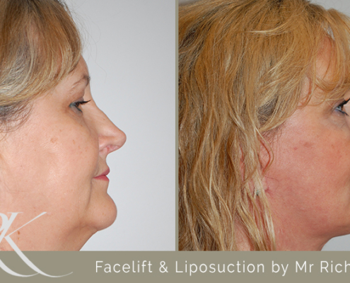 Facelift & Liposuction Results South Wales