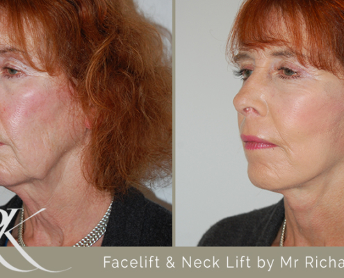 Facelift & Neck Lift Results South Wales