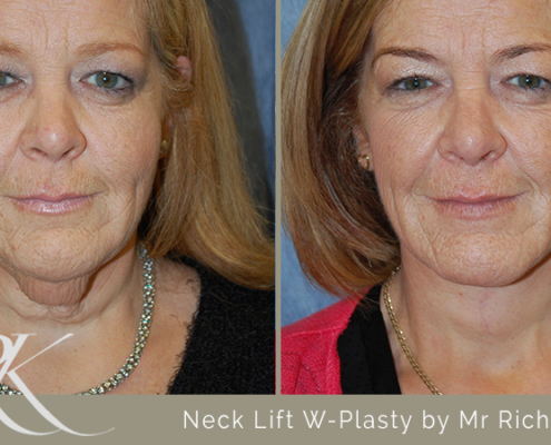 Neck Lift Results Cardiff