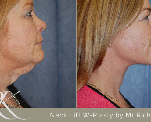 Neck Lift Results South Wales